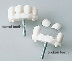 Damage of front teeth
