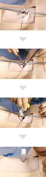 Conventional tracheotomy